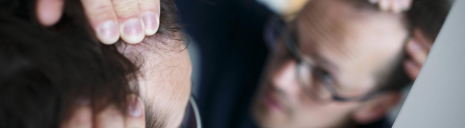 Gestelltes Symbolbild zum Thema Haarausfall. Ein Mann betrachtet seinen Haaransatz im Spiegel.