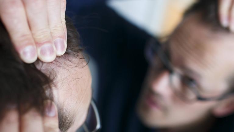 Gestelltes Symbolbild zum Thema Haarausfall: Ein Mann betrachtet seinen Haaransatz im Spiegel.