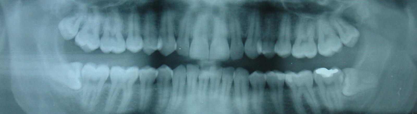 Röntgenaufnahme eines Ober- und Unterkiefers, von vorne.