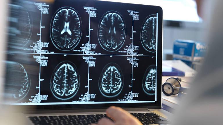 Gehirn Computertomographie