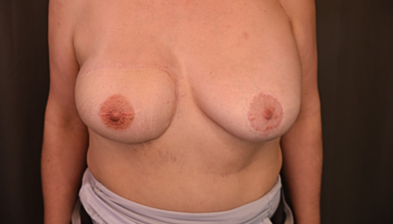 Rekonstruktion der Brustwarze der rechten Brust
