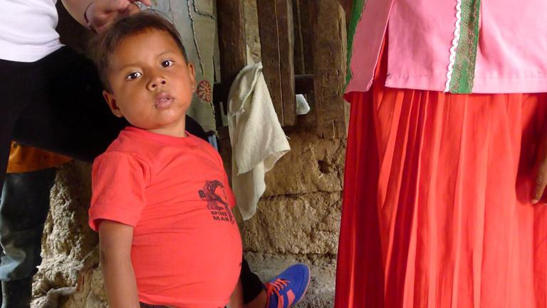 Ein mangelernährter Junge in Guatemala