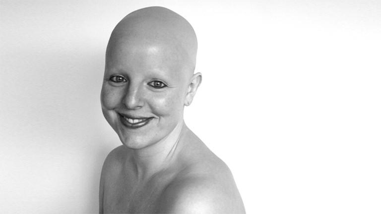Lisa Haalck mit Glatze im Porträt
