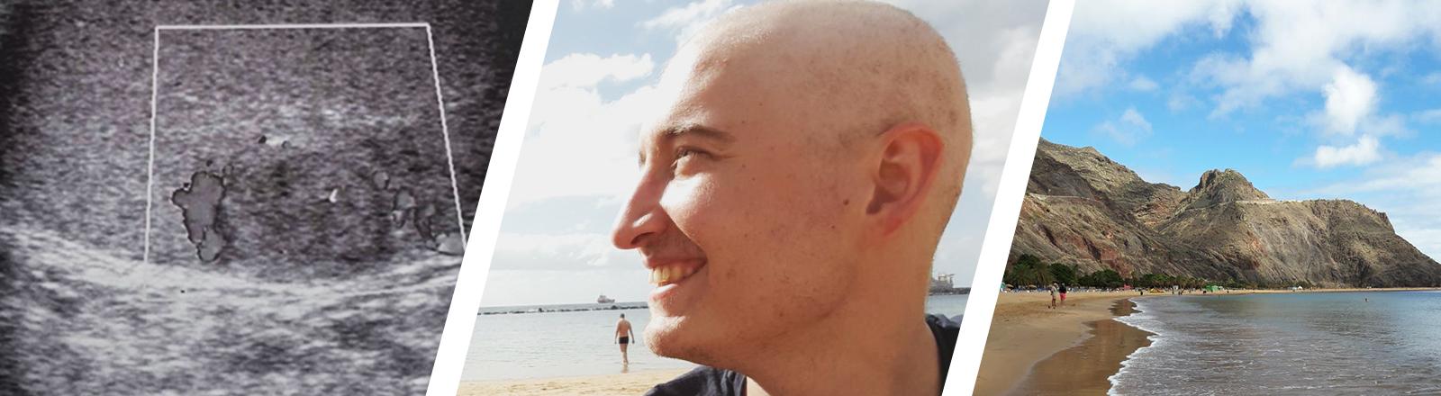 Ultraschallbild Hodenkrebs; Porträt Kolja Unger, Teneriffa