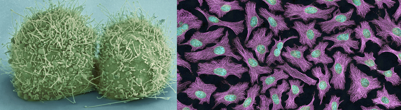 HeLa-Zellen