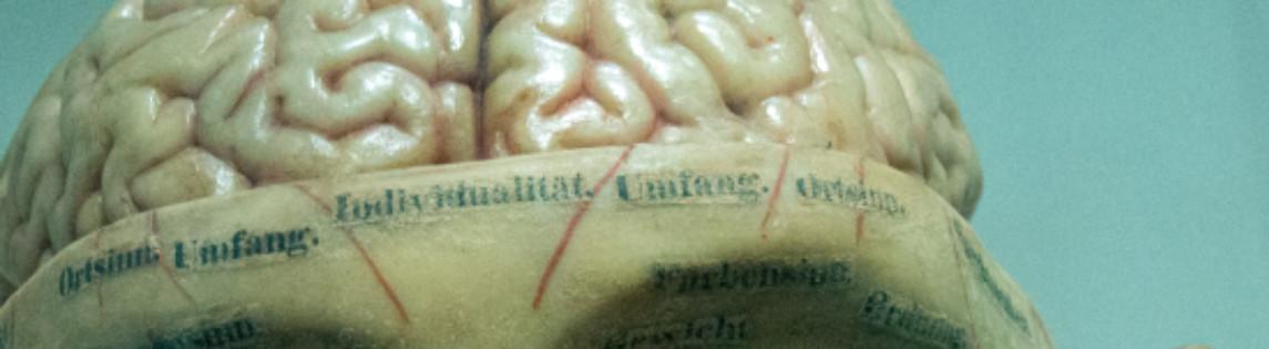 Skulptur mit offenem Gehirn.