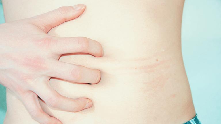 Eine Hand kratzt über einen nackten Bauch und hinterlässt rote Striemen.