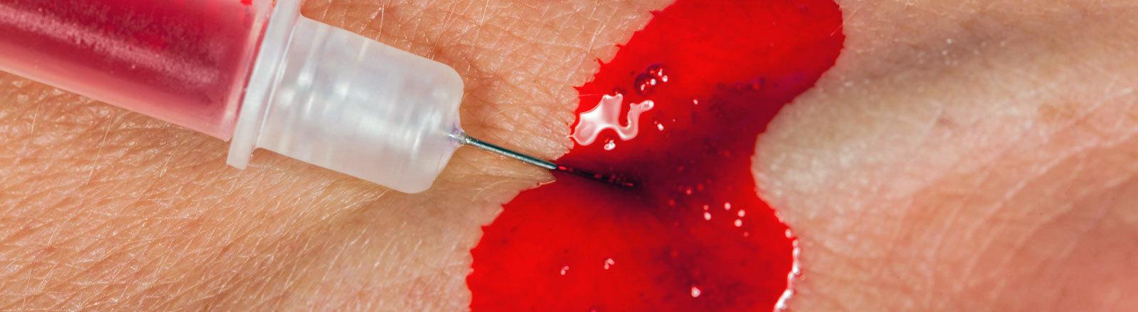 Eine Spritze sticht in die Haut und es blutet.
