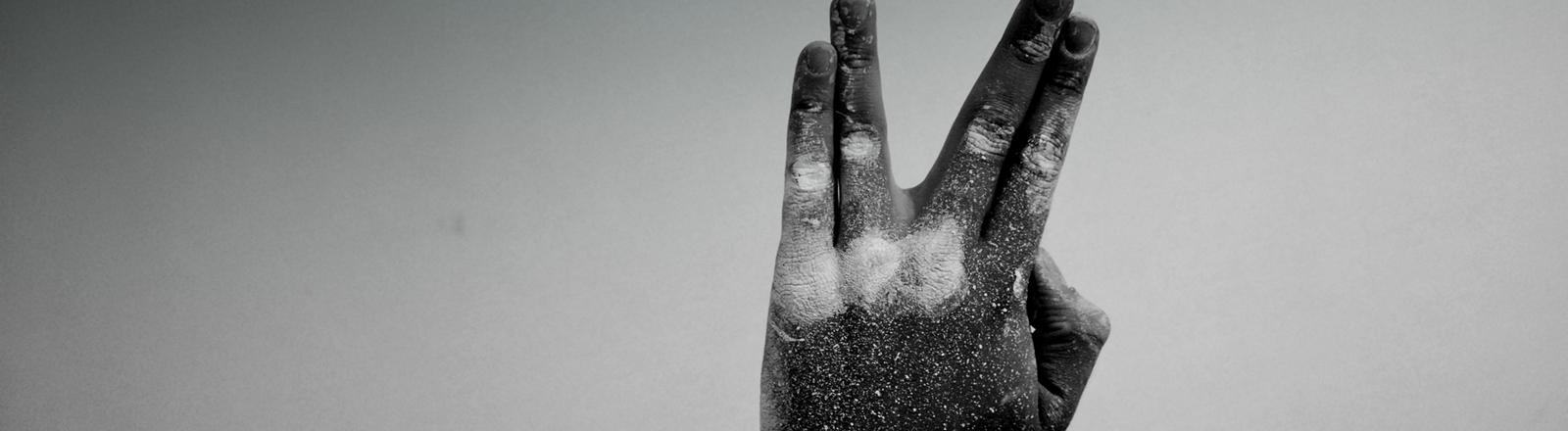 Schwarz-weiß-Foto zeigt eine Hand. Ring- und Mittelfinger sind gespreizt.