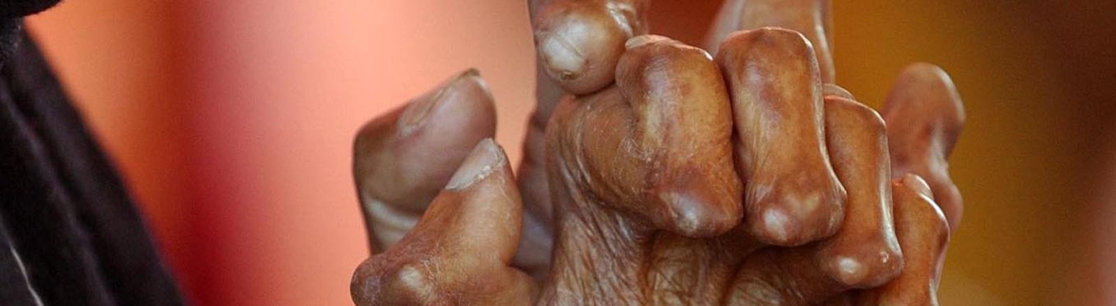 Von Lepra gezeichnete Hände