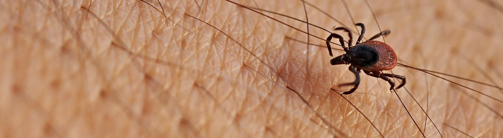 Eine Zecke krabbelt über menschliche Haut.
