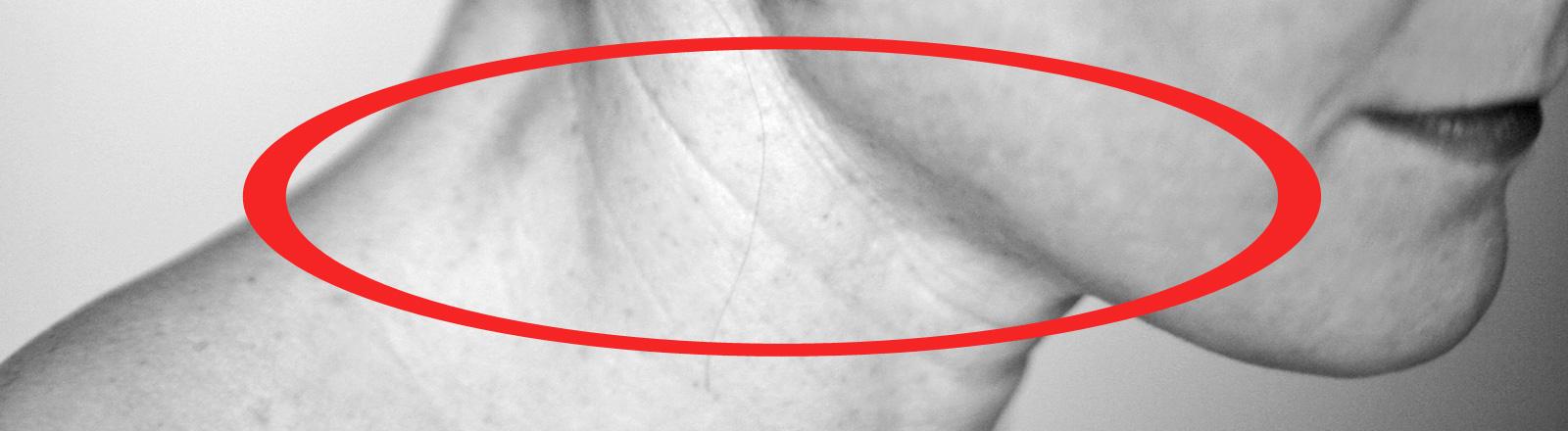 Schwarz-Weiß-Foto: Ein Frauenhals im Profil mit Falten. Die Falten markiert einer roter Kreis.