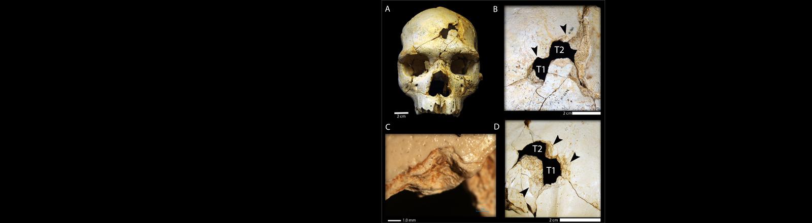 A: Der frontale Schädeleinschlag; B: Die Einschlagstellen im Schädel im Detail; C: Miskiopische Aufnahme der Bruchstelle; D: Einschlagstellen aus der Sicht des Schädelinneren.