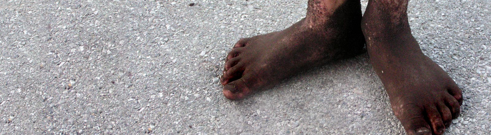 Eine Junge mit schlammigen Füßen