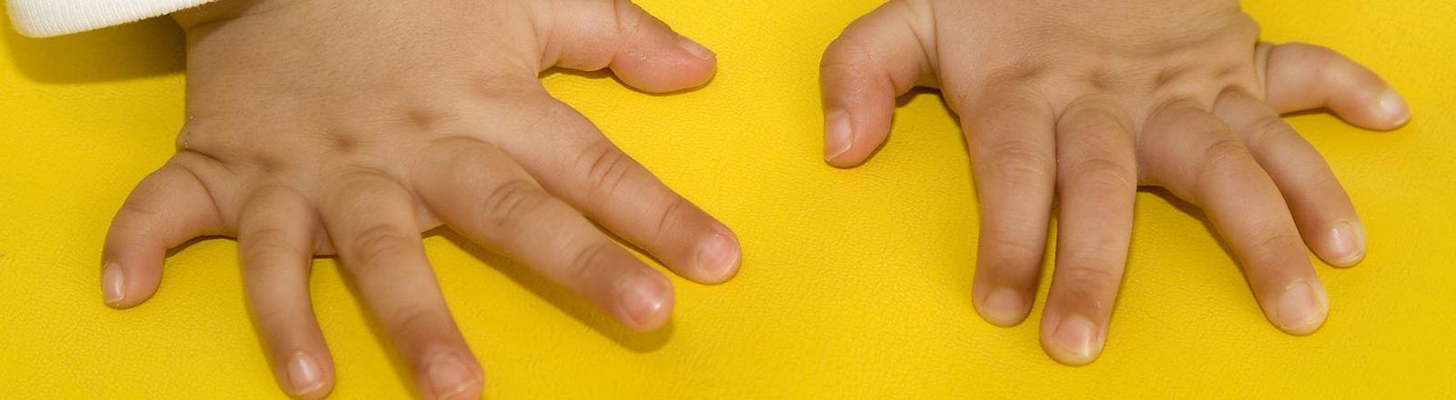 Das Foto aus dem Februar 2007 des Helios-Klinikums in Berlin-Buch zeigt die Hände des kleinen Yassir, der aufgrund von Polydaktylie (Mehr-oder Vielfingerigkeit) mit jeweils sechs Fingern an den Händen geboren wurde. Im Klinikum wurde Yassir operiert und hat nun die korrekte Anzahl von Fingern