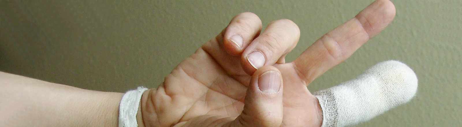 verletzte Finger