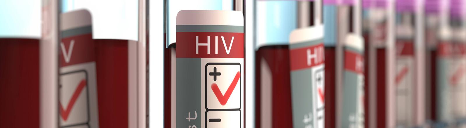 HIV-infizierte Blutproben.