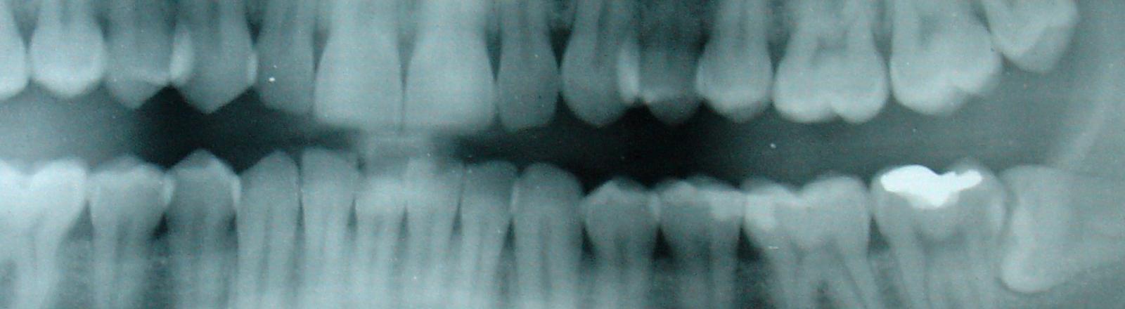 Eine geröntgte Zahnreihe mit Amalgam-Füllung.