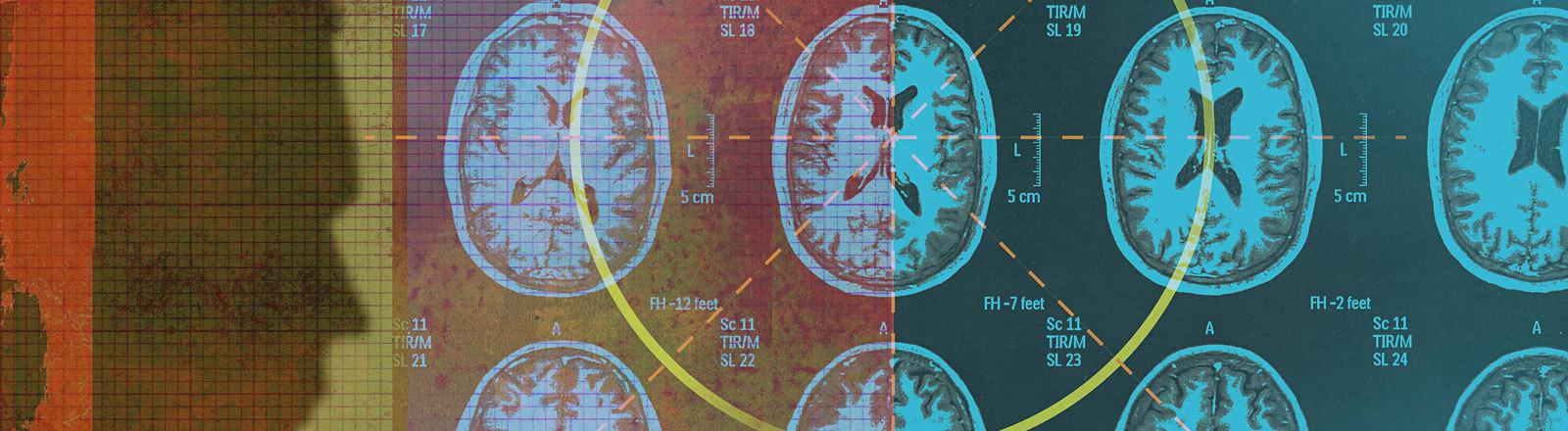 Collage Gehirnquerschnitte