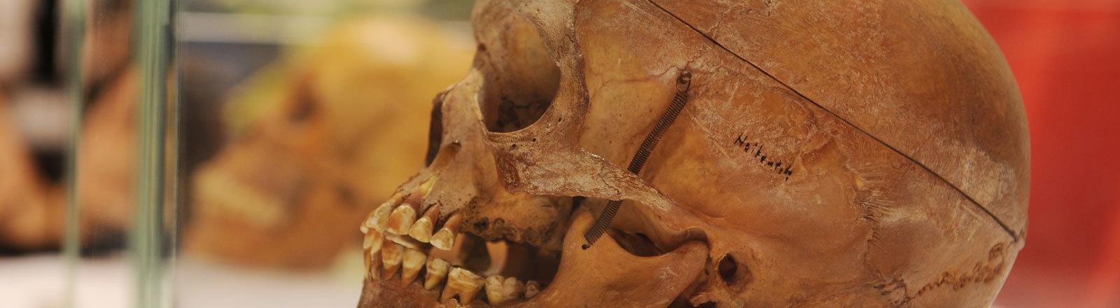 Schädel in der Berliner Charité hinter Plexiglas. Vor mehr als hundert Jahren ermordeten deutsche Soldaten tausende Einwohner der damaligen Kolonie Deutsch-Südwestafrika. Viele Schädel der Getöteten wurden nach Deutschland geschafft, weil Wissenschaftler sie für ihre dubiose Rassenforschung bestellt hatten.