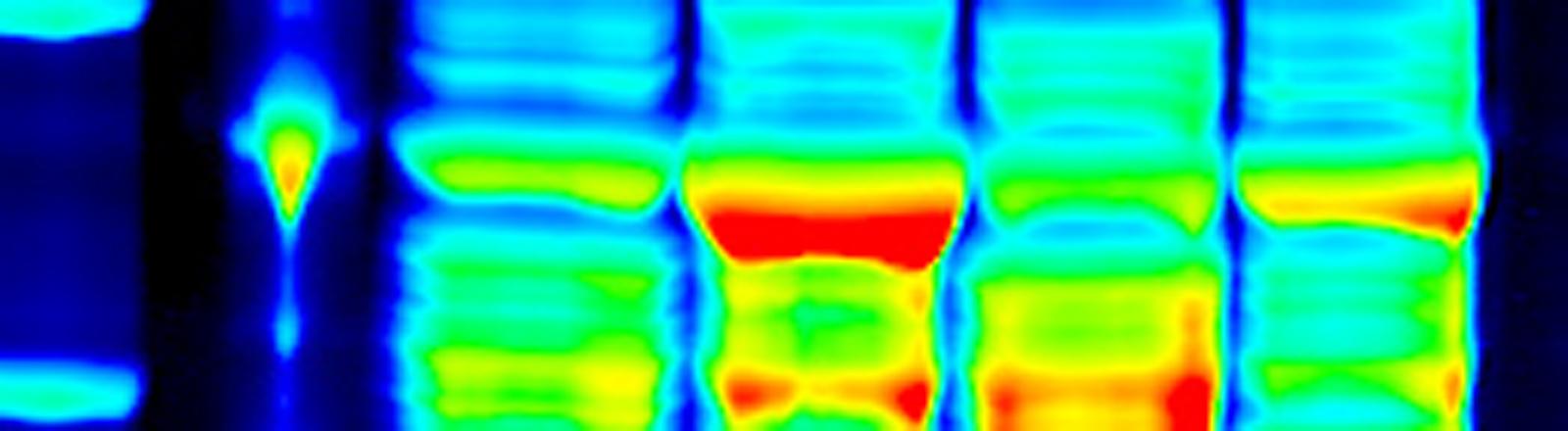Die undatierte Illustration zeigt in einem Elektrophoresegel nach ihrer Größe aufgetrennte Proteine.