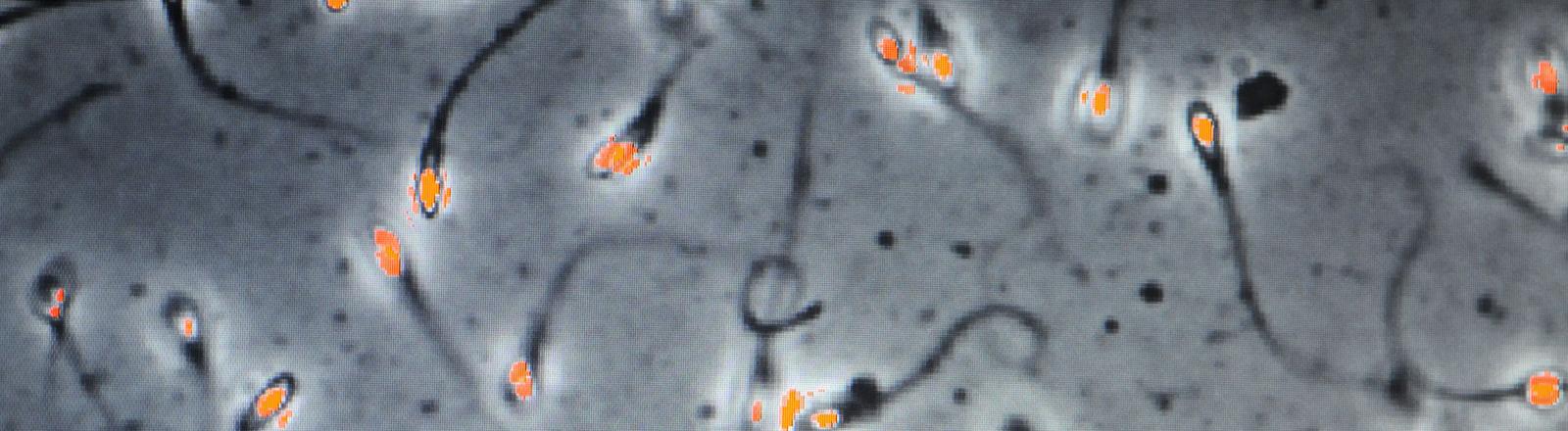 Spermien unter dem Mikroskop
