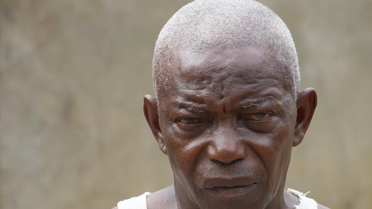 Ein Ebola-Überlebender in dem sierra-leonischen Dorf Kallia.
