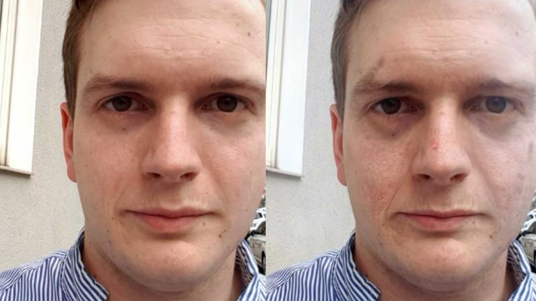 Guter Vosatz: Das passiert mit deiner Haut, wenn du aufhörst zu Rauchen | nikotinsucht.kelsshark.com