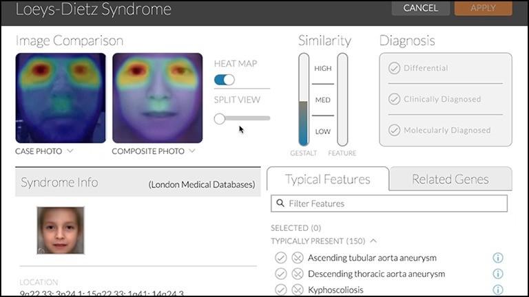 Screenshot der App Face2Gene