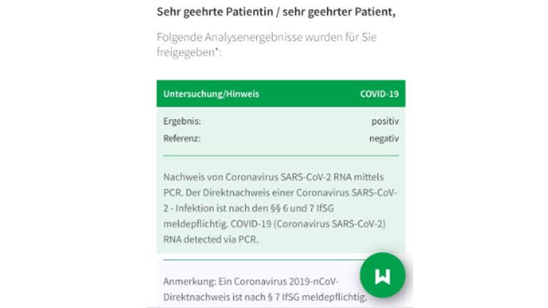 PCR-Test Testergebnis