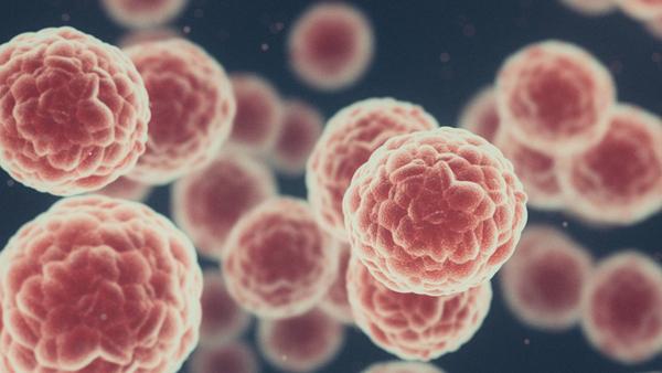 Krebszellen unter einem Mikroskop (Computer Illustration)