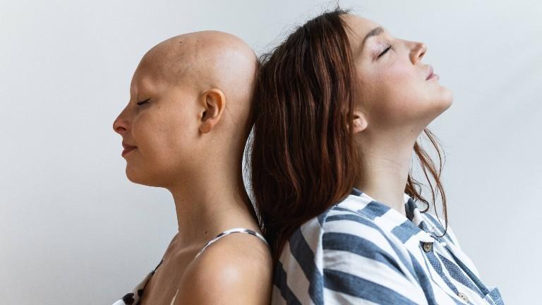 Eine Frau mit der Autoimmunerkrankung Alopecia Areata (kreisrundem Haarausfall) schaut in die Kamera.
