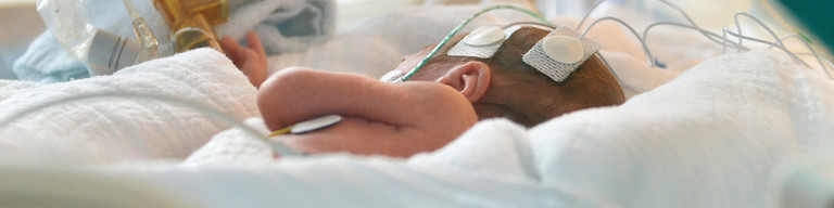 Ein zu früh geborenes Baby liegt am 05.02.2013 in Berlin in der Neonatologie der Charité in einem Inkubator.