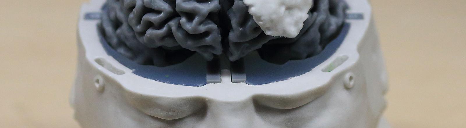 Eine Plastik: Kopf mit offenem Schädel und freiliegendem Gehirn