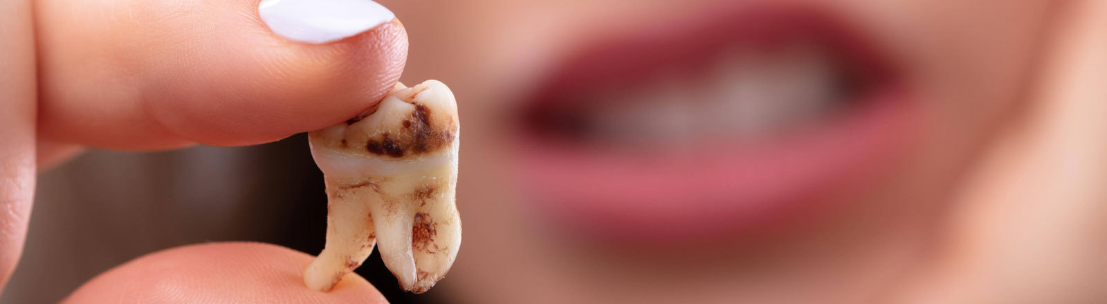 Ein gezogener, fauliger Zahn.