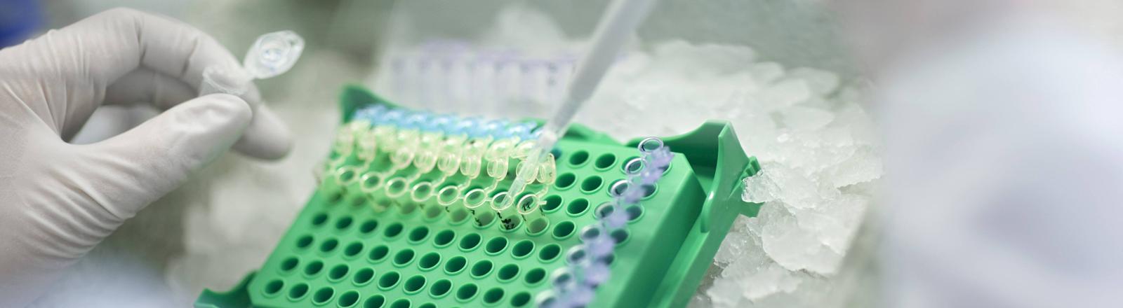 Test auf Antibiotika-Reistenz