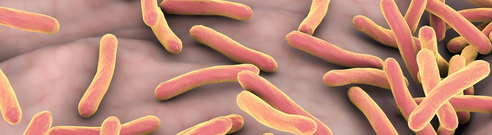 Tuberkulosebakterien