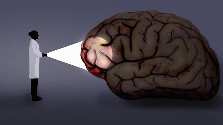 Eine Frau in einem Kittel beleuchtet ein Gehirn.