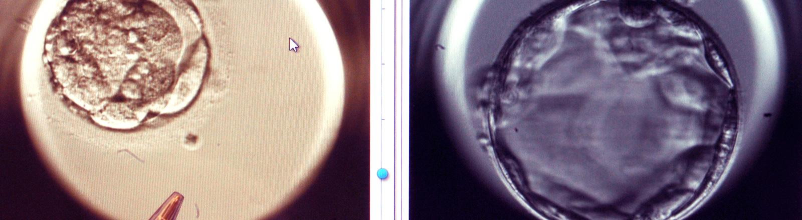 Links ein nicht zeitgerecht entwickelter Embryo am fünften Entwicklungstag, rechts ein gut entwickelter (Bildschirmfoto)