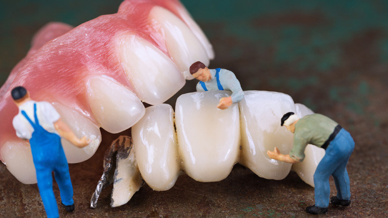 Modell einer Zahnreinigung mit Miniaturmännchen