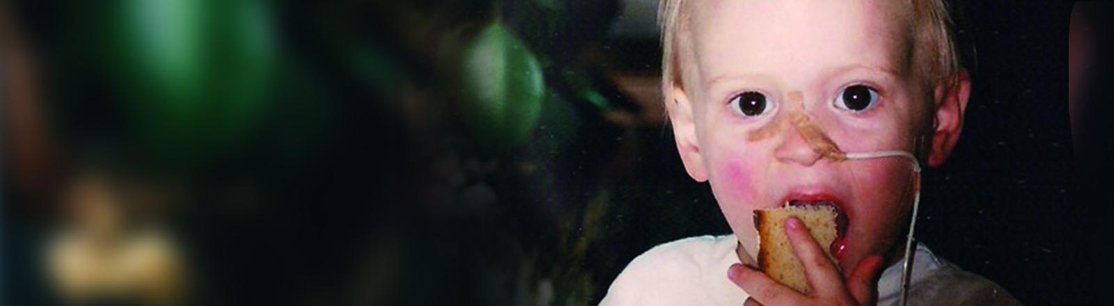 Kleinkind mit Schlauch in der Nase
