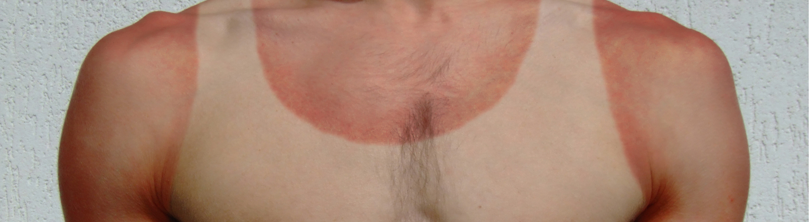 Männerkörper mit Sonnenbrand-Abdruck vom Unterhemd