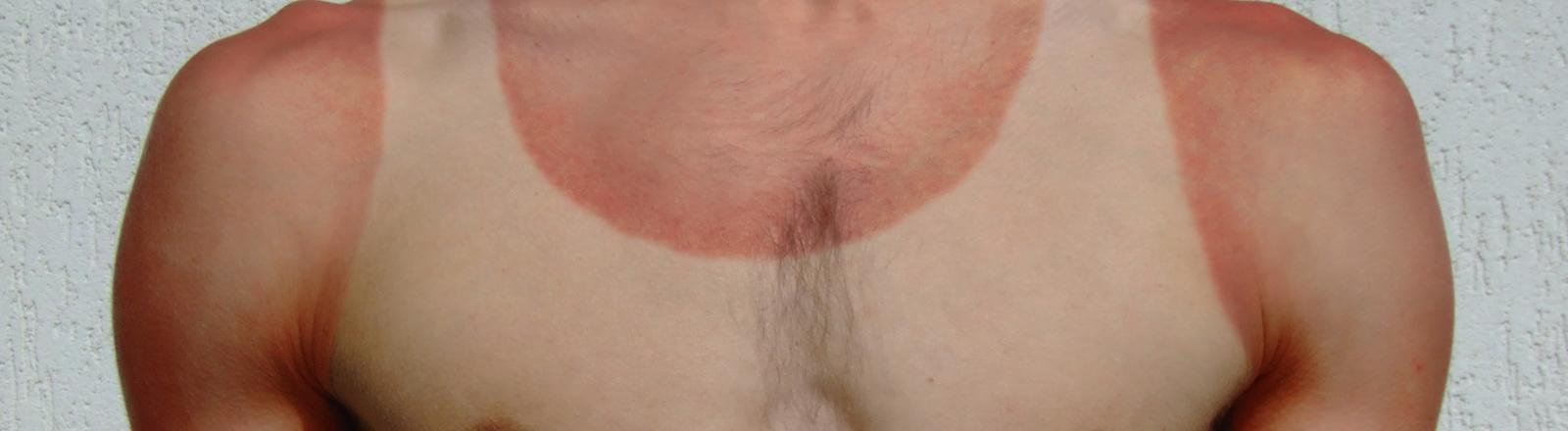 Mann mit Sonnenbrand und Abdruck vom Unterhemd.