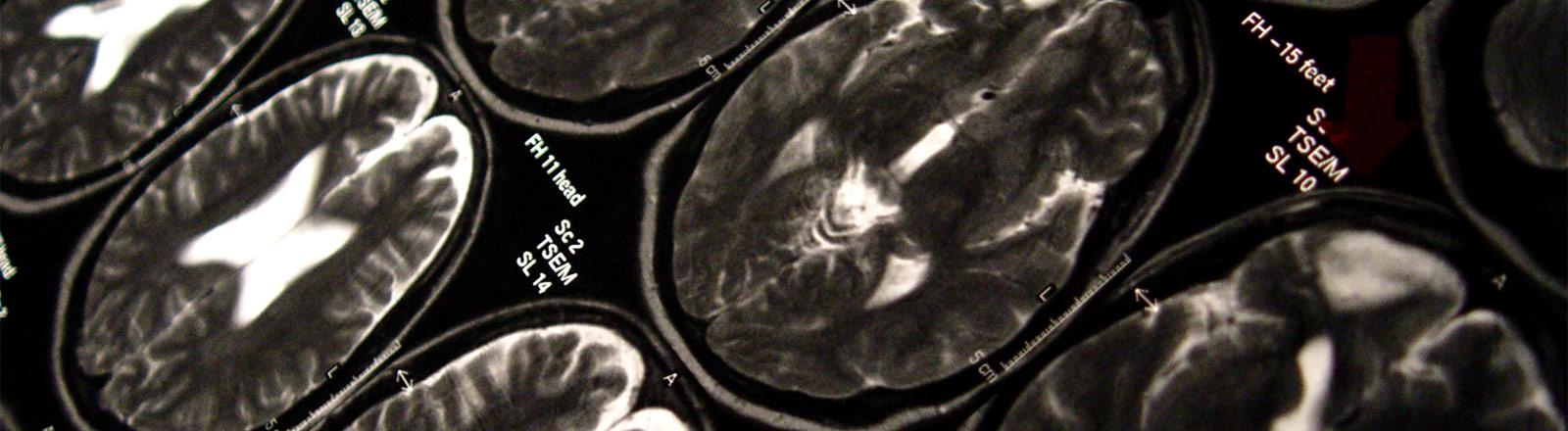 Aufnahme eines Gehirn aus einem Kernspintomografen