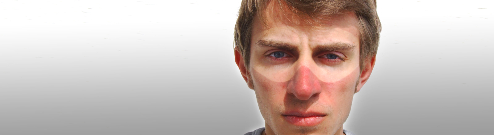 Mann mit Sonnenbrand im Gesicht.
