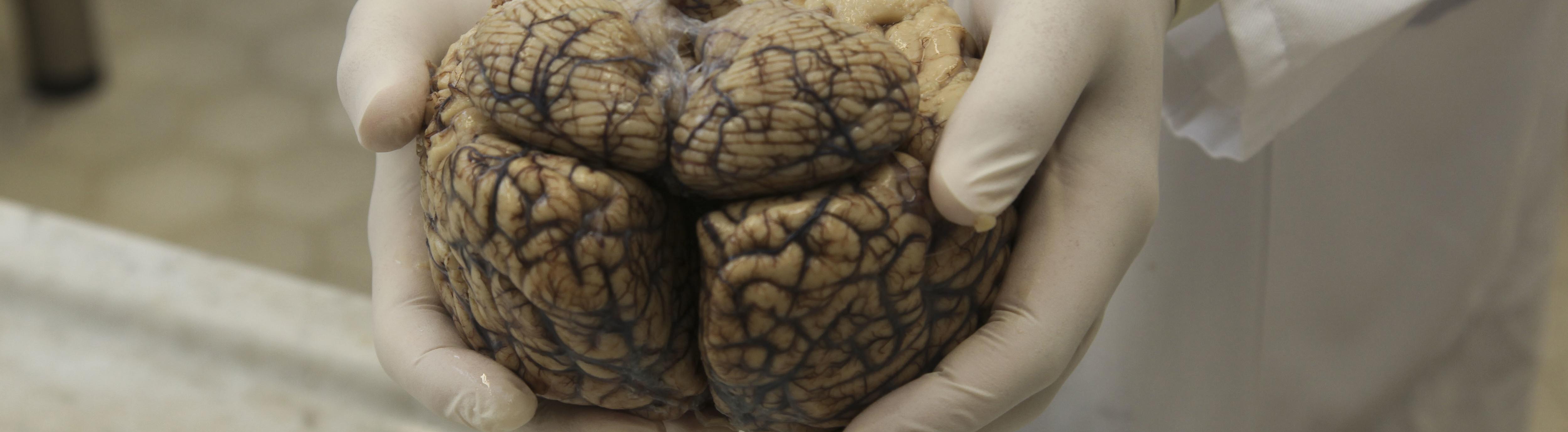 Manche Erkrankungen kann man noch nach dem Tod erkennen: Menschliches Gehirn in der Pathologie der Charité Berlin