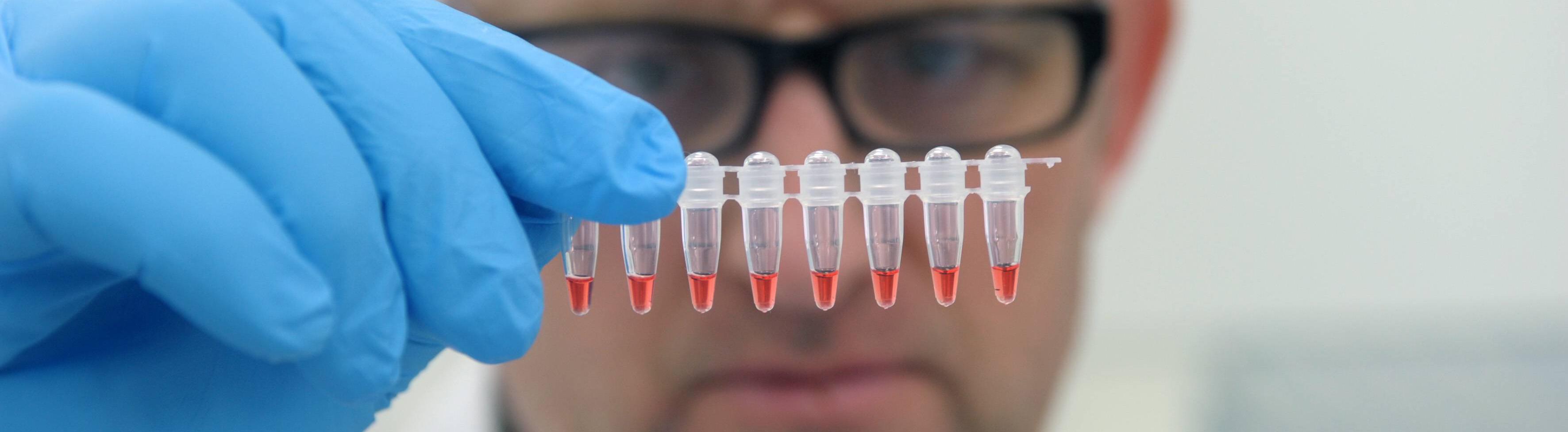 Laborant mit DNA-Proben