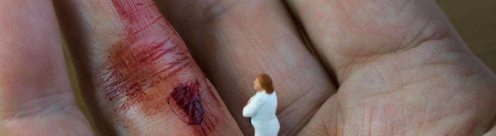 Zwei Figuren auf einer Handfläche mit einem verletzten und blutenden Finger