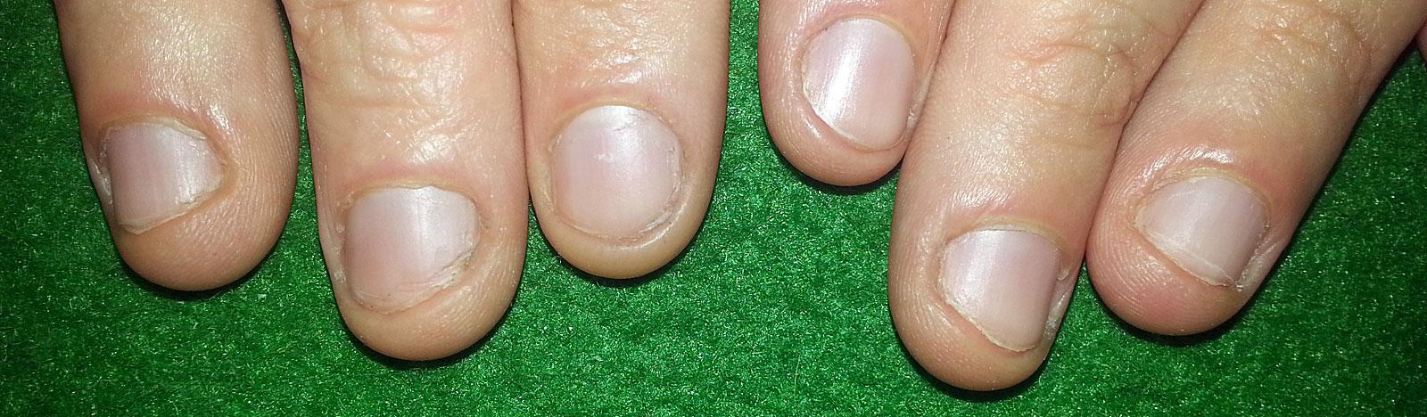 Je drei Fingernägel einer Hand auf grünem Untergrund