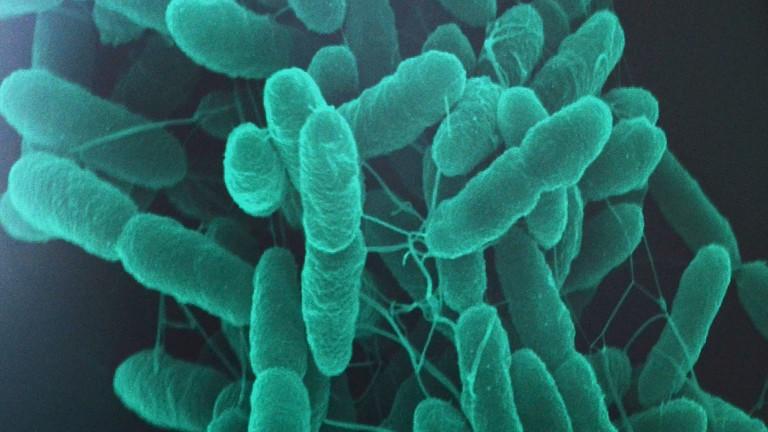 Auf einem Computerbildschirm ist am 26.04.2014 eine eine Vergrößerung von Pseudomonas-putida-Bakterien zu sehen (dpa).